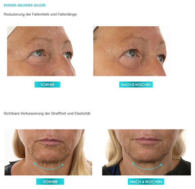 Study: Classic Collagen Set reduces wrinkles by 25